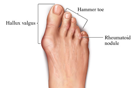podiatry rhuematoid arthritis What is rheumatoid arthritis (ra) rheumatoid arthritis (ra) is an autoimmune disease that causes the immune system to attack the lining of the joint capsule (synovium), resulting in inflammation and joint damage.